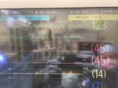 Cardiac anesthesia for days